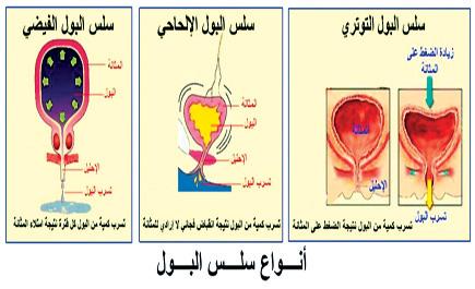 السلس البولي النساء المرض المخجل! tb_141_1.jpg