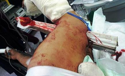 مستشفى الملك خالد بنجران ينقذ ln_238_1.jpg
